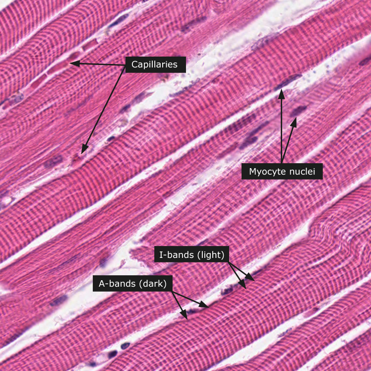 Skeletal Muscle Tissue: muscle, skeletal, tissue | Glogster EDU ...